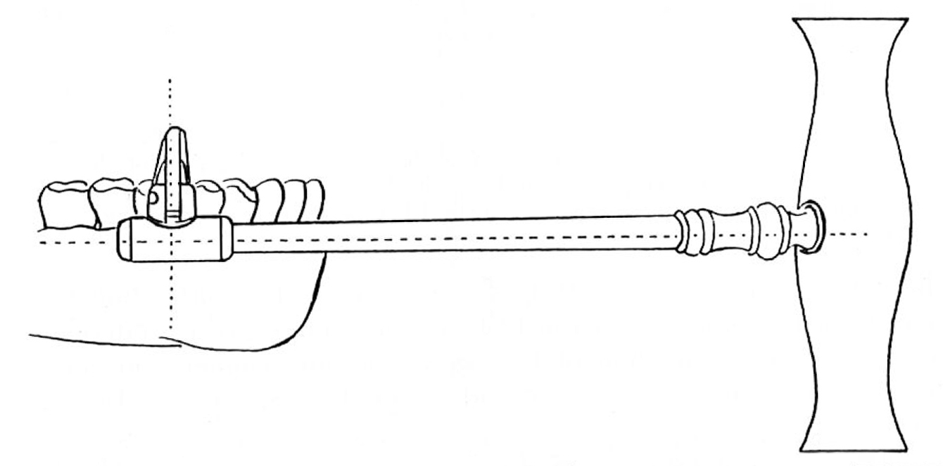 Key in Lateral Position Illustration