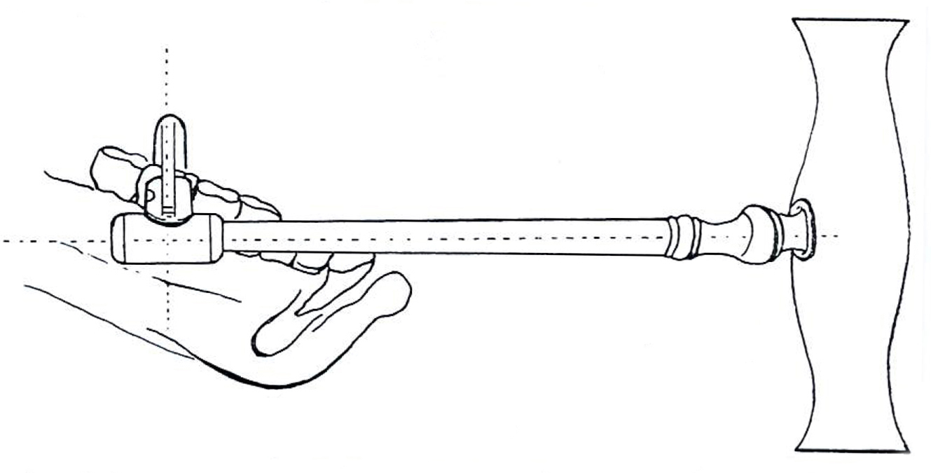 Key in Medial Position Illustration