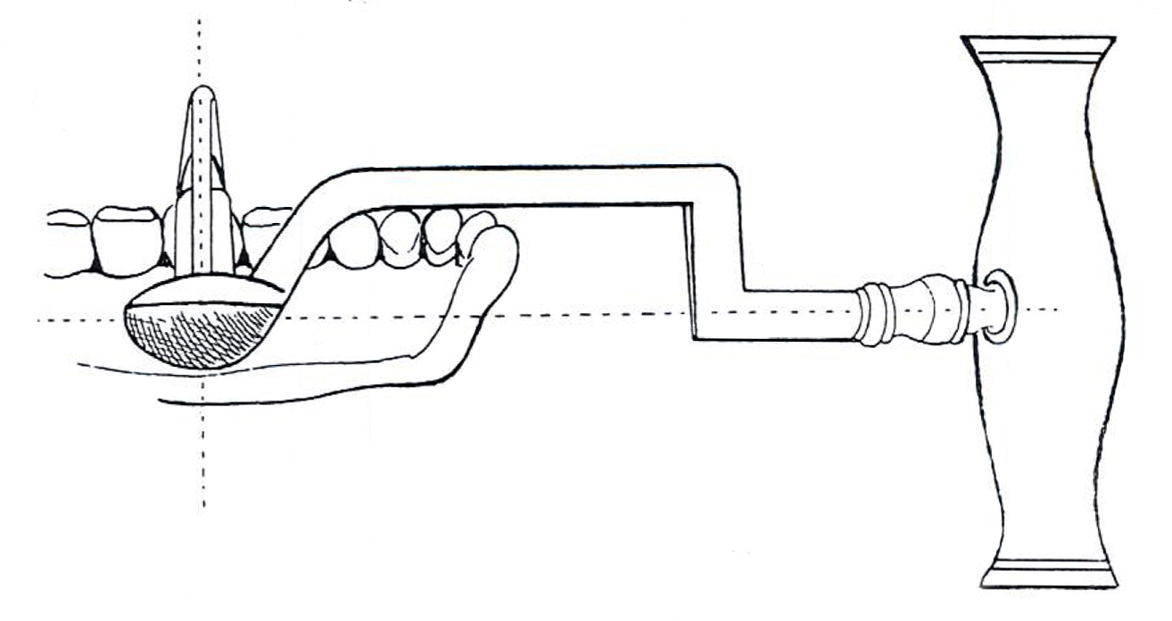 Improved Construction Key Illustration