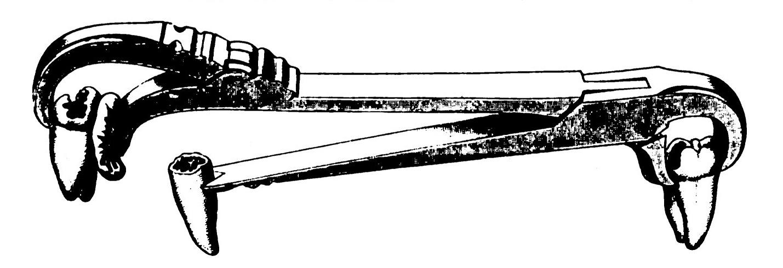 Mayflower Extractor Illustration